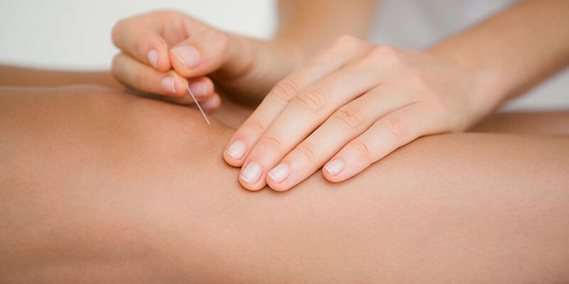 Acupuncture in Burtonsville